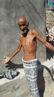 الغذاء العالمي: الحرب والانهيار الاقتصادي وكورونا تدفع اليمن إلى حافة المجاعة