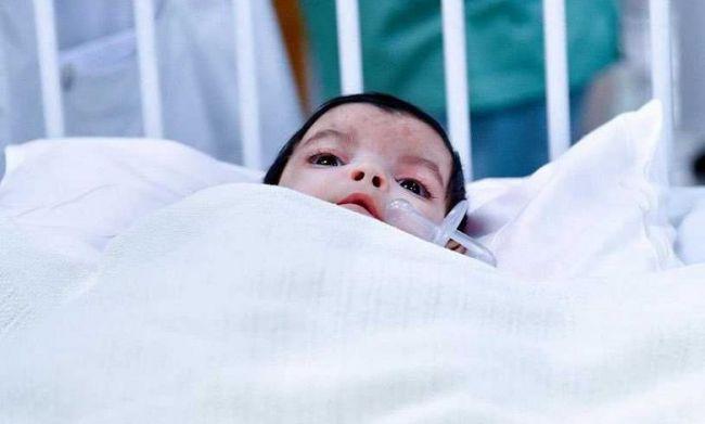 نجاح عملية فصل التوأم الطفيلي اليمني في أحد مستشفيات السعودية